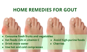 home-remedies-gout